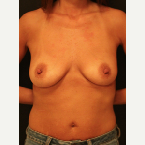 45-54 year old woman treated with Breast Augmentation before 3731838