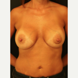 45-54 year old woman treated with Breast Augmentation after 3731838