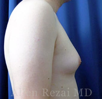 25-34 year old man treated with Male Breast Reduction 2801610