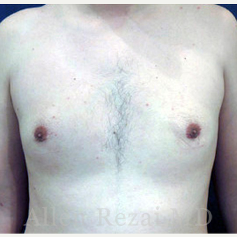 25-34 year old man treated with Male Breast Reduction after 2801610