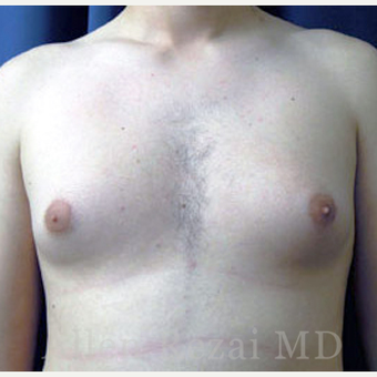 25-34 year old man treated with Male Breast Reduction before 2801610