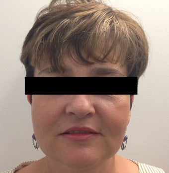 54 year old woman who underwent ThermiLift of the jawline and neck. after 1417732