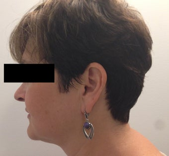 54 year old woman who underwent ThermiLift of the jawline and neck. 1417732
