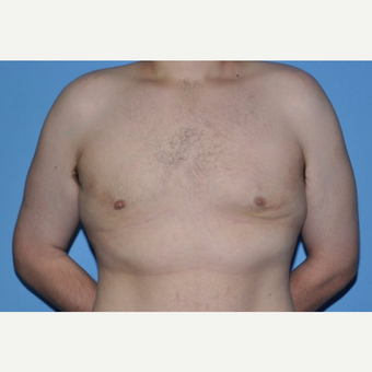 Bilateral Gynecomastia Correction after 2969819