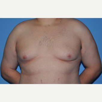 Bilateral Gynecomastia Correction before 2969819