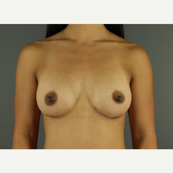 35-44 year old woman treated with Breast Implants after 3026520