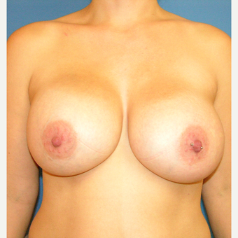 35-44 year old woman treated with Breast Augmentation after 3748073