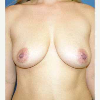 35-44 year old woman treated with Breast Augmentation before 3748073