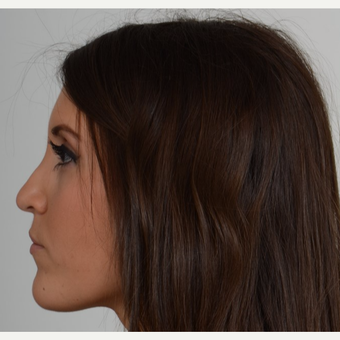 25-34 year old woman treated with Rhinoplasty after 3205519