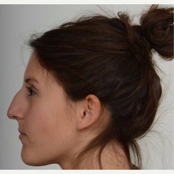 25-34 year old woman treated with Rhinoplasty before 3205519