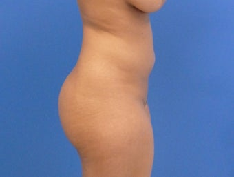 33 y.o. female – Lipo of abdomen, flanks, and back with fat transfer to buttocks  – 1450cc per side before 3005928