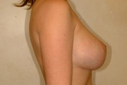 Breast Lift after 133299
