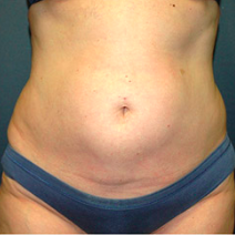 51 year old woman treated with Tummy Tuck before 3578591