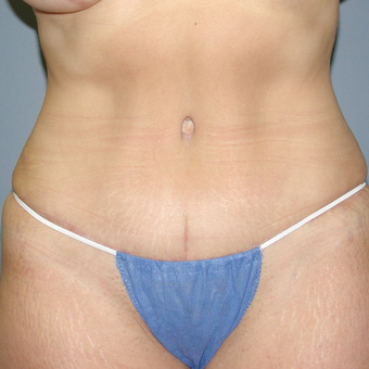 47 year old woman treated with Tummy Tuck after 3042761