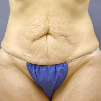 47 year old woman treated with Tummy Tuck before 3042761