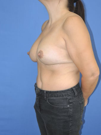 49 year old female with fat grafting to the breast 1166206