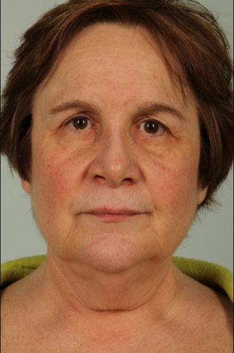 63 year old woman treated with Facelift before 3440229