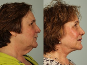 63 year old woman treated with Facelift 3440229