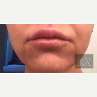 35-44 year old woman treated with Lip Lift before 2925157
