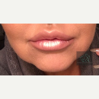 35-44 year old woman treated with Lip Lift after 2925157