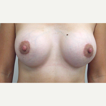 Breast Lift after 3108936