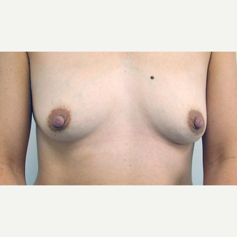 Breast Lift before 3108936