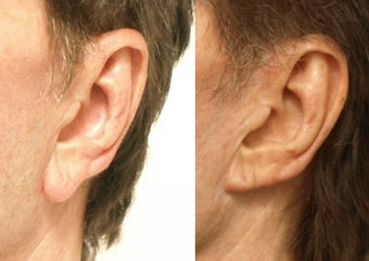 Earlobe Reduction after 665520