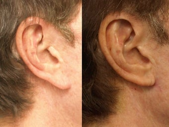 Earlobe Reduction before 665520