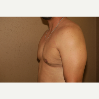 25-34 year old man treated with Male Breast Reduction after 3384384