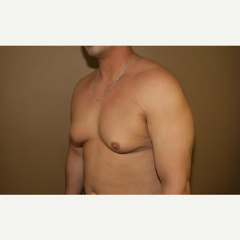 25-34 year old man treated with Male Breast Reduction before 3384384