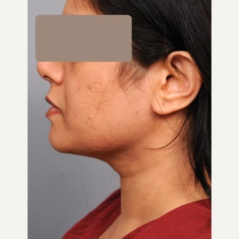 Chin Liposuction 35-44 year old woman after 1674804