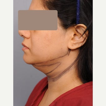 Chin Liposuction 35-44 year old woman before 1674804