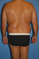 Male Liposuction before 289513