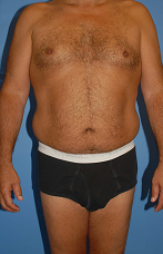 Male Liposuction 289513