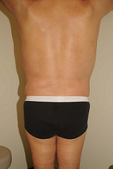 Male Liposuction after 289513