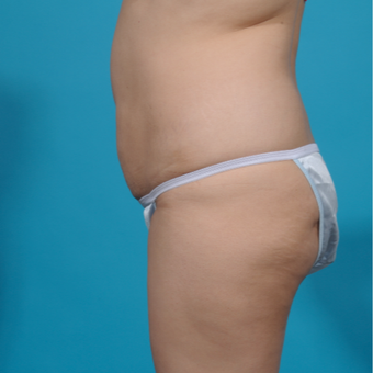 25-34 year old woman treated with Brazilian Butt Lift before 3292869