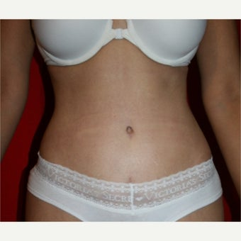 35-44 year old woman treated with Tummy Tuck after 2615306