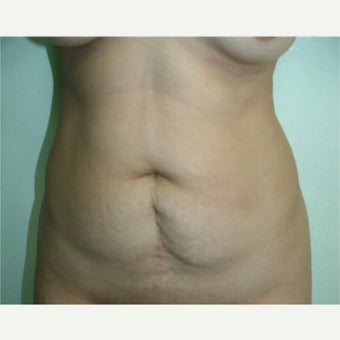 35-44 year old woman treated with Tummy Tuck before 2615306