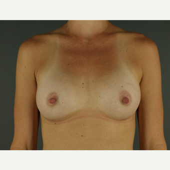 25-34 year old woman treated with Breast Implants after 3026505