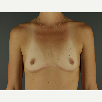 25-34 year old woman treated with Breast Implants before 3026505