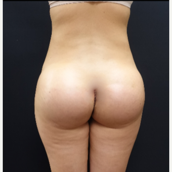 25-34 year old woman treated with Brazilian Butt Lift Revision with 712cc Butt Implants after 3259416