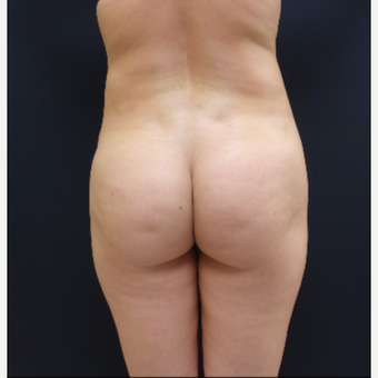 25-34 year old woman treated with Brazilian Butt Lift Revision with 712cc Butt Implants before 3259416