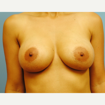 27 year old woman treated with Breast Implants, saline, B to full C cup, high profile after 3624258