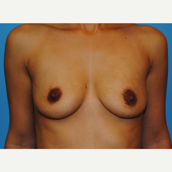 27 year old woman treated with Breast Implants, saline, B to full C cup, high profile before 3624258