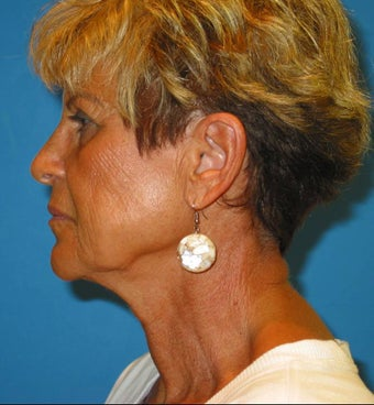 66 year old woman treated for jolws, sagging midface, and neck obliquity before 1351655
