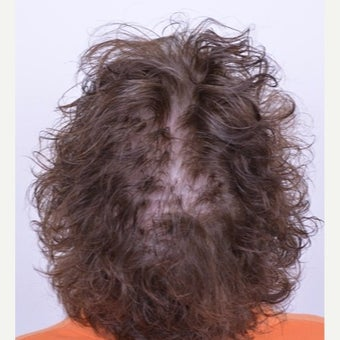 55-64 year old woman treated with female pattern hair loss with Low-level laser therapy before 1803709