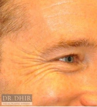 35-44 year old man treated with Botox