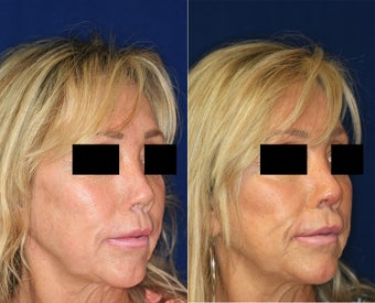 Non Surgical Nose Job before 1431734
