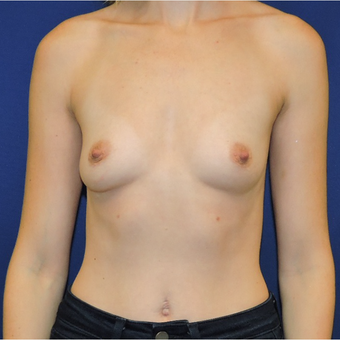 25-34 year old woman treated with Breast Implants before 3747387