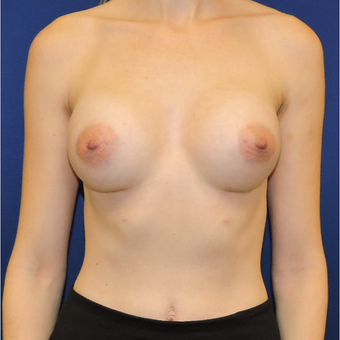 25-34 year old woman treated with Breast Implants after 3747387